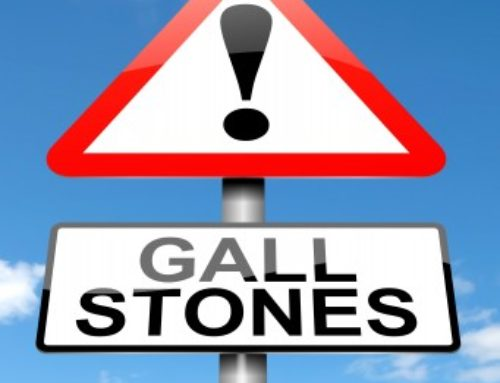 Non-surgical Treatments for Gallstones