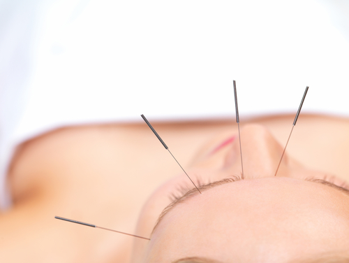 Acupuncture: How It Works And What It Does