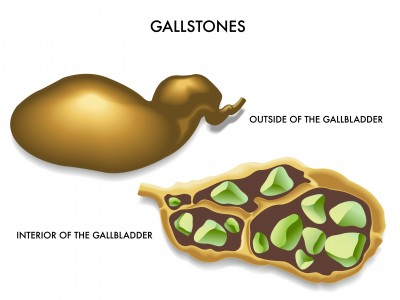 Gallstones: Signs, Symptoms and Causes